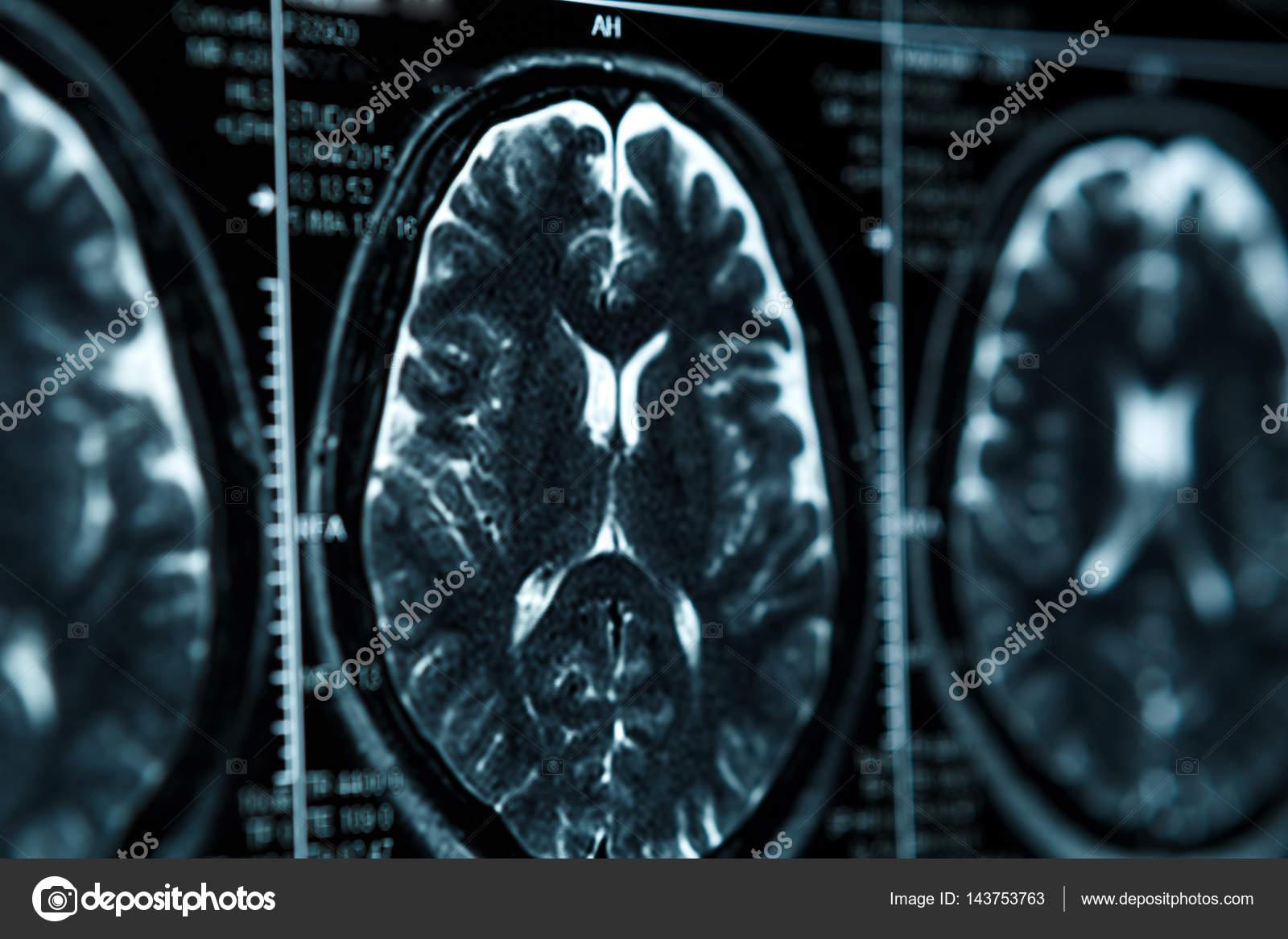 MRT oder Kernspintomographie Bild von Kopf und Gehirn-Scan ...