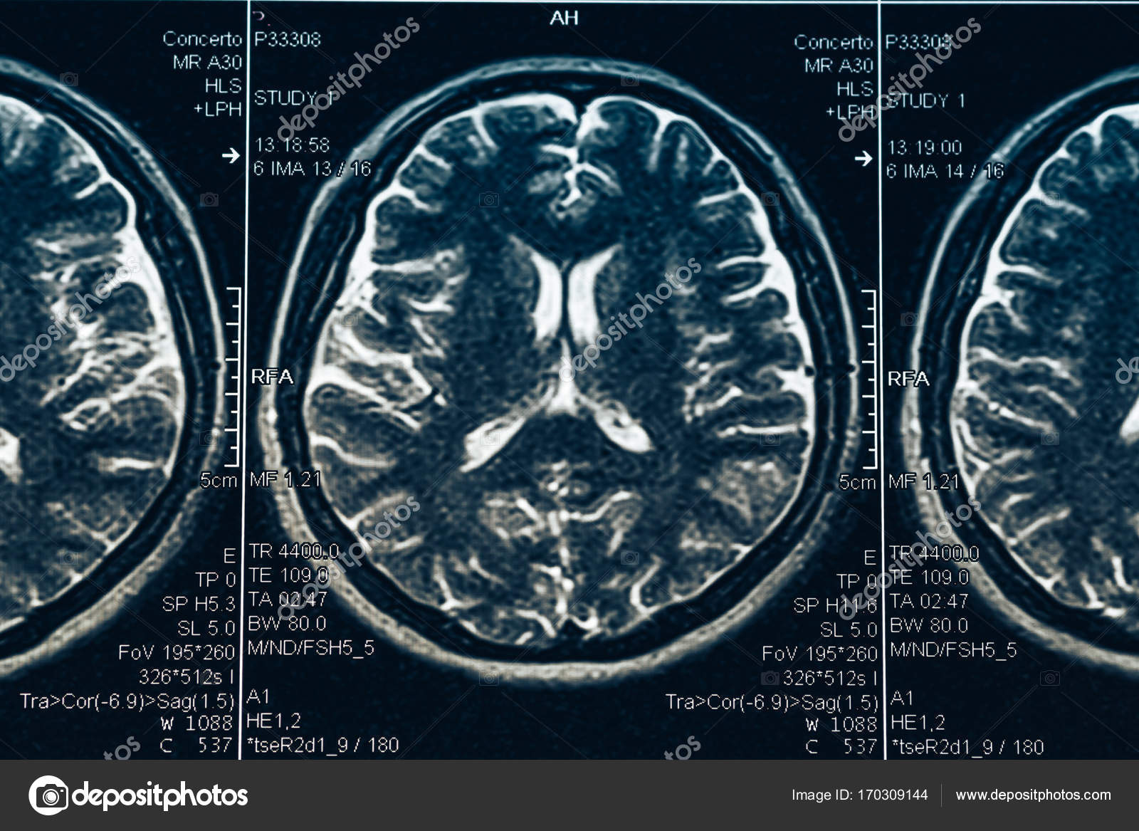MRI cerebral computarizada o radiografía Neurología cráneo humano ...