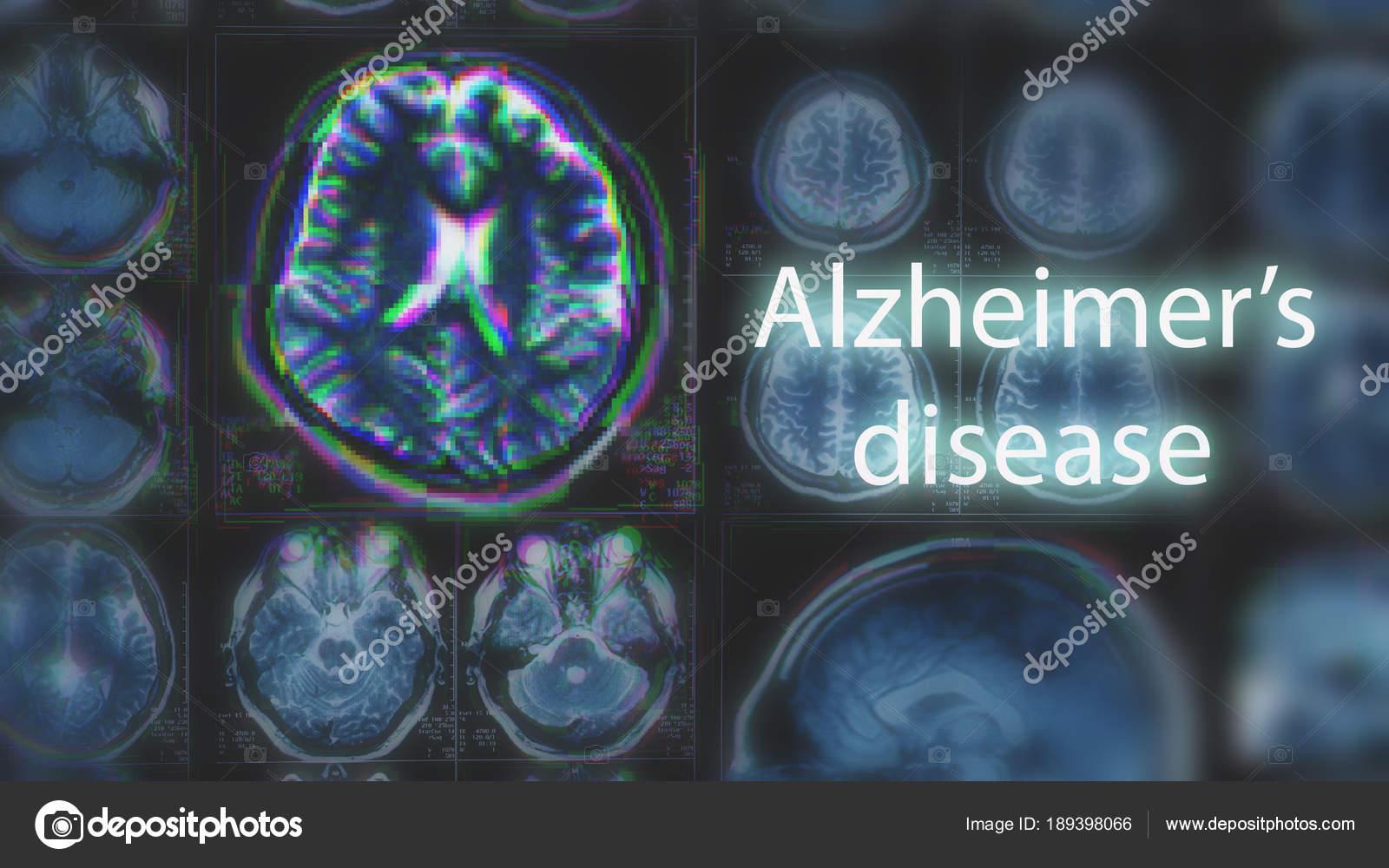 Alzheimer oder Parkinson Konzept. Verschwommene Mri scan des Gehirns ...