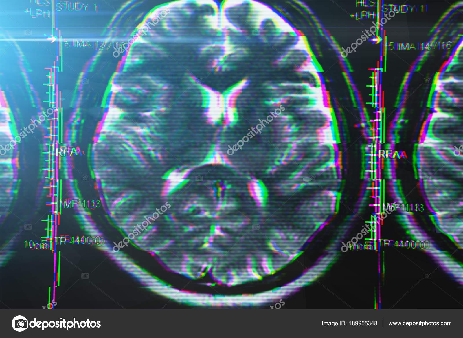 Röntgen- oder Mri Gehirn-Scan mit Glitch-Effekt. Abstraktes Konzept ...