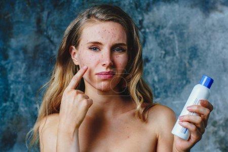 Photo pour La jeune femme a une allergie à la crème corporelle. Son visage a beaucoup d'acné et elle est très malheureuse . - image libre de droit