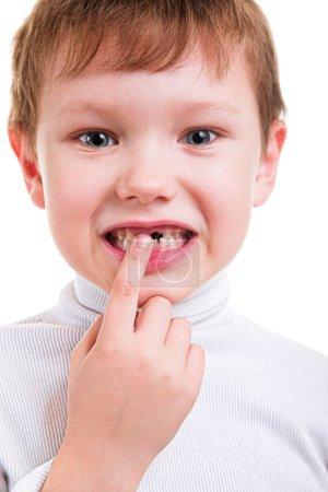 Photo pour Petit garçon montrant l'absence de dents de bébé isolé sur fond blanc - image libre de droit