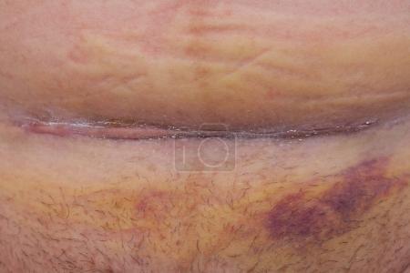Photo pour Gros plan du ventre de la femme avec une cicatrice d'une césarienne - image libre de droit