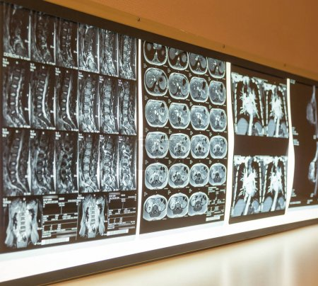 Giant board full of medical scan tests
