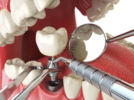 Tooth human implant. Dental implantation concept. Human teeth or
