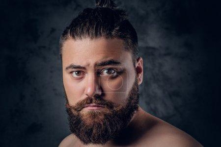 fatty bearded male