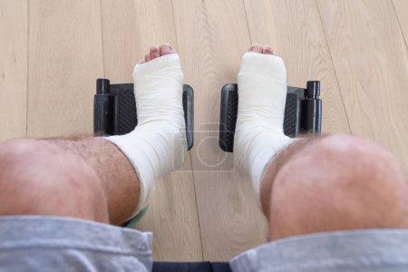 Broken legs in plaster