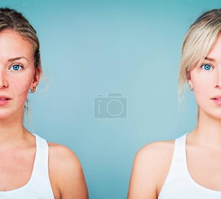 Young Woman with Perfect Skin and Skin Problem. Unhealthy and He
