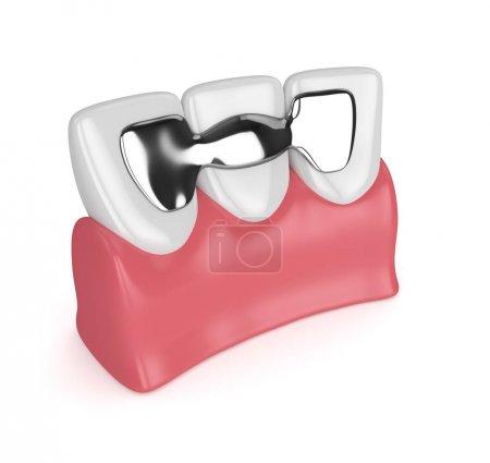 Photo pour 3d rendu des dents avec pont dentaire maryland dans les gencives isolées sur fond blanc - image libre de droit