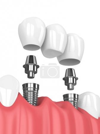 Photo pour Rendu 3D de mâchoire et les implants avec pont dentaire sur fond blanc - image libre de droit