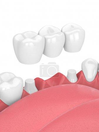 Photo pour Rendu 3D de mâchoire avec pont dentaire sur fond blanc - image libre de droit