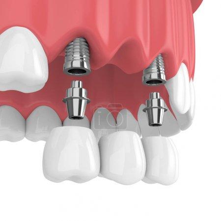 Photo pour Rendu 3D d'implants avec pont dentaire dans la mâchoire supérieure isolé sur fond blanc - image libre de droit