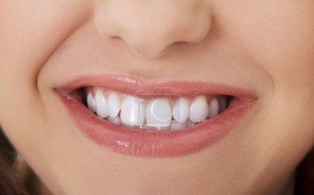 Photo pour Des dents blanches. Beau sourire de femme avec des dents blanchissantes. Soins dentaires et buccodentaires . - image libre de droit