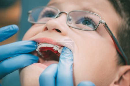 dental correction to the child patient