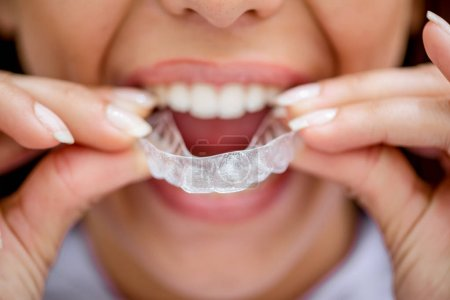 Close view of young female patient try to put mobile orthodontic appliance for dental correction on teeth