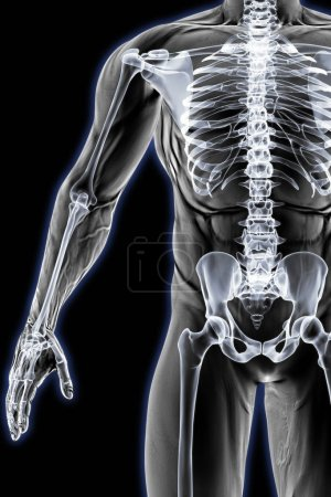male body under the X-ray