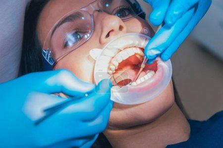 Photo pour Traitement dentaire avec dilatateur . - image libre de droit