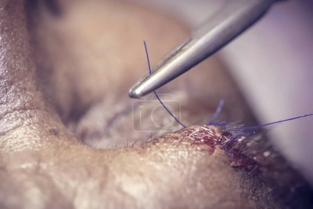 Close up of Stitching wound