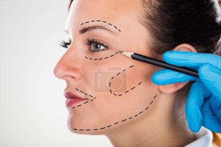 Photo pour Gros plan d'un chirurgien Correction Lignes de dessin sur le visage de jeune femme pour la chirurgie plastique - image libre de droit