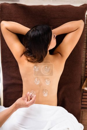 Woman Receiving Cupping Treatment