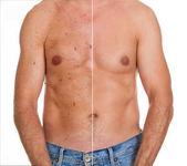 Ergebnis der Hautbehandlung