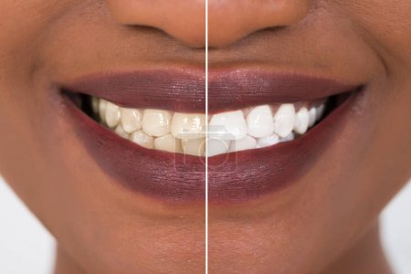 Photo for Closeup Detail Of Smiling Woman Teeth Before And After Whitening - Royalty Free Image