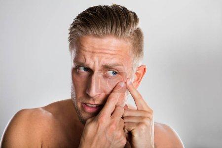 Man Squeezing Pimple