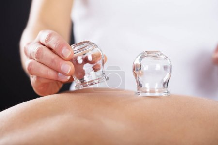 therapist giving cupping treatment