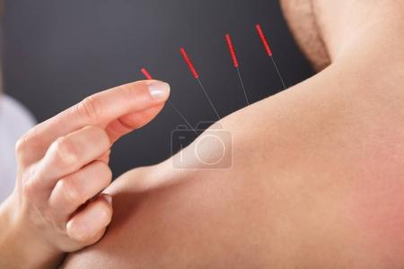 Female Hand Putting Acupuncture Needle