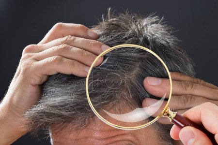 Dermatologist Checking Patient Hair