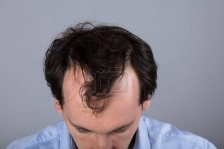 Close-up Of A Man's Head With Hair Loss Symptoms