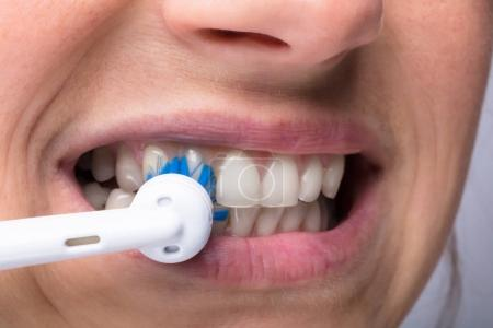 Close-up Of A Woman's Teeth With Electrical Toothbrush