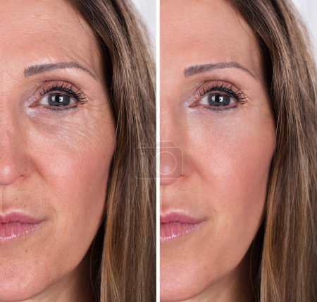 Photo for Photo Of Anti-aging Procedures On Caucasian Woman Face - Royalty Free Image
