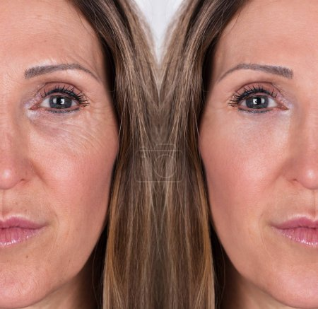 Photo Of Anti-aging Procedures On Caucasian Woman Face