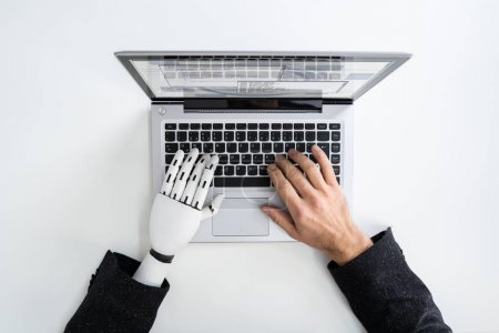 Photo for Man With Prosthetic Hand Working On Laptop. Artificial Limb - Royalty Free Image