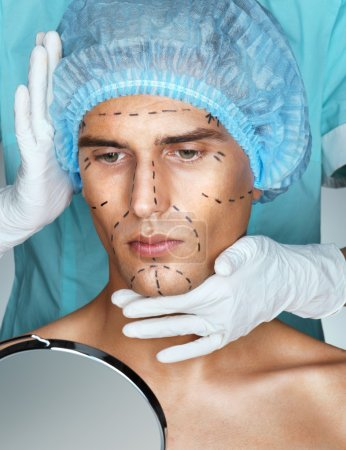 Beautiful Man with perforation lines on his face before plastic surgery operation