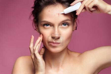 Photo for Scowling girl pointing at her acne and applying treatment cream. Photo of young girl with problem skin on pink background. Skin care concept - Royalty Free Image