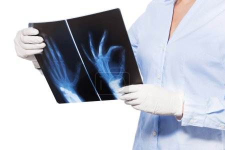 female doctor holding x-ray scans