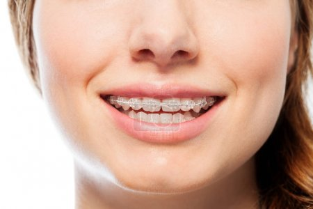 Close-up picture of happy womans smile with orthodontic clear braces