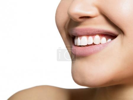 Photo pour Bouche de femme avec de grandes dents de rire sur fond blanc. Bonne santé beau sourire féminin. Soins et santé des dents. - image libre de droit