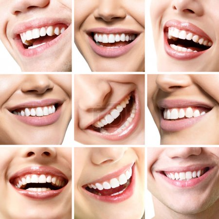 Photo for Beautiful smiles set. Perfect wide smiles of young fresh women and men with great healthy white teeth, isolated over white background. Dental care, whitening, stomatology, restoration of teeth, prosthetics, oral hygiene concept. Smiley faces details. - Royalty Free Image