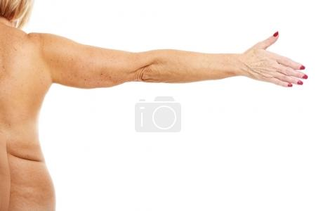 Obese adult woman showing arm over white background