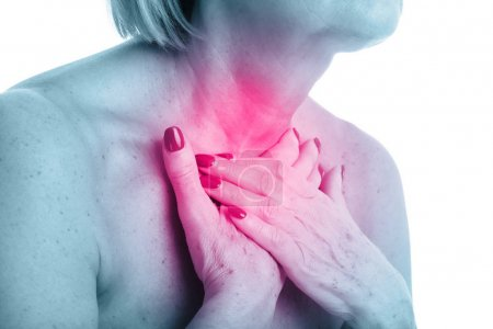 Closeup view of adult woman with thyroid gland isolated on white background