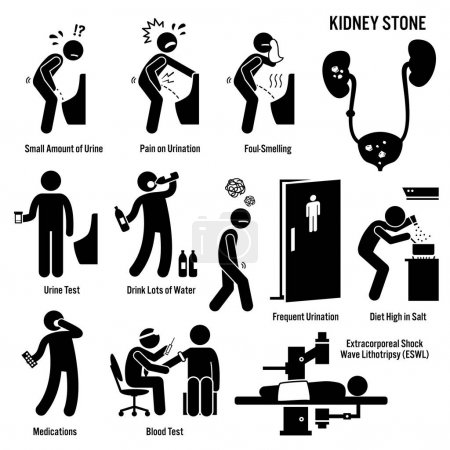 Illustration for Kidney Stone Icons. Pictogram and diagrams depict signs, symptoms, diagnosis, and treatment of kidney stones. - Royalty Free Image