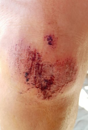 Close up on a scraped human knee