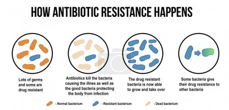 Illustration for How antibiotic resistance happens diagram, vector illustration (for basic medical education, for clinics & Schools) - Royalty Free Image