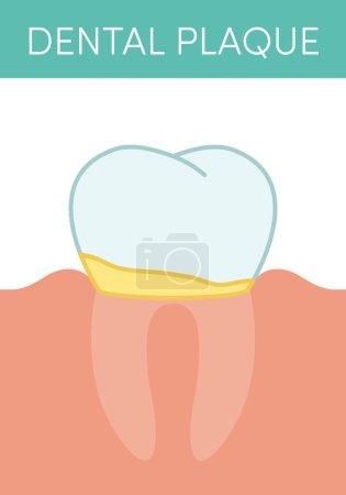 Illustration pour Concept de plaque dentaire. Illustration vectorielle de la dent molaire humaine avec film biologique dentaire dessus - image libre de droit