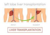 Liver transplantation concept