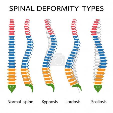 Spinal deformity types.