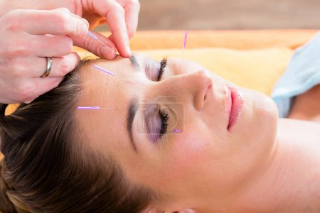 Therapist setting acupuncture needles
